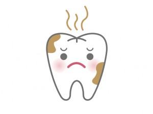 歯と歯の間の黒ずみ