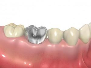 銀歯からの口臭の原因