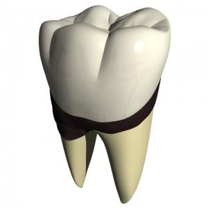 歯石を放置している歯
