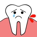 歯茎が腫れた!歯茎の腫れは痛みがあってもなくても危険のサイン