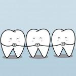 まだ遅くない!歯並び矯正は大人でも効果的