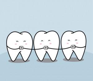歯並びを矯正している大人の歯