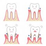 歯周ポケットは歯周病と口臭の原因!改善方法はバス法での歯磨き