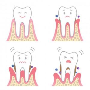 歯周ポケットの深さと改善方法