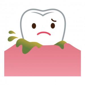 歯槽膿漏に悩んでいる歯