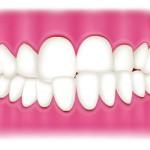 口臭が気になる…原因は舌にあるって本当?その原因を徹底解明!