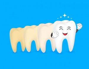 ホワイトニングで一定の期間をかけて白くなった歯