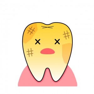 ホワイトニングしようか悩んでいる歯の黄ばみ
