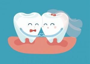 ブライダルホワイトニングで白くてきれいになった歯