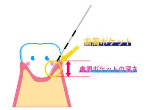歯周ポケットは深くなっても回復する?