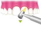 ②歯と歯の隙間を清掃