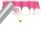 ③歯面のクリーニング