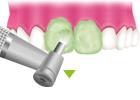 ④歯面の艶出し