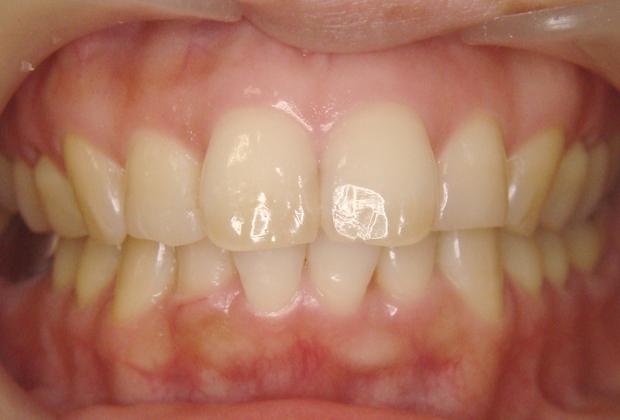 歯のクリーニングの効果