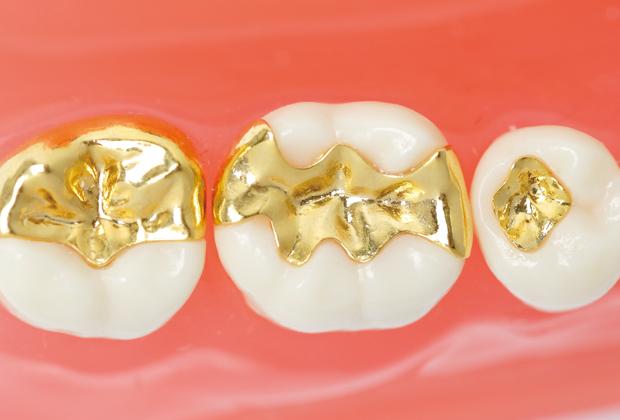 ゴールドインレー(金歯)
